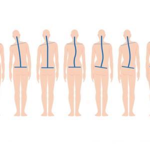 姿勢の評価から痛みをとる施術