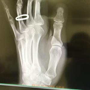 左手親指の付け根が…