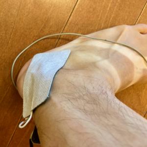 アキレス腱を痛めてしまった。。。