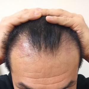 自毛植毛(5ヶ月)