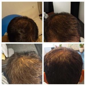 植毛7ヶ月