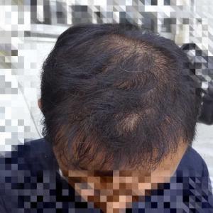 植毛10ヶ月
