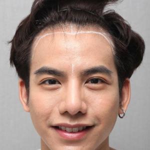 タイ芸能人も植毛に来ました