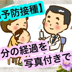 【BCG予防接種跡】経過3ヶ月分の写真を公開!【ハンコ注射跡画像有】