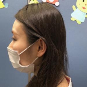 短頭症の矯正 : 30代女性のケース