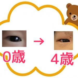 ふと気づいた目の大きさの変化