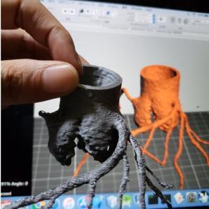 3D プリンターの医療への応用 -冠動脈を3Dプリント-