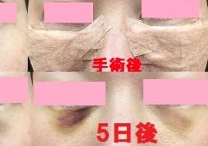 目の下の脱脂手術後経過~6日目~