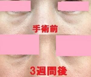 目元脱脂手術から3週間経過