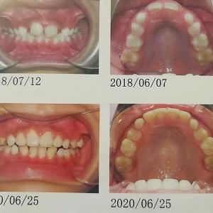 歯の矯正 経過報告