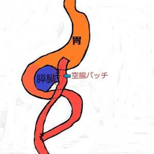 膵体尾部切除術の空腸パッチ