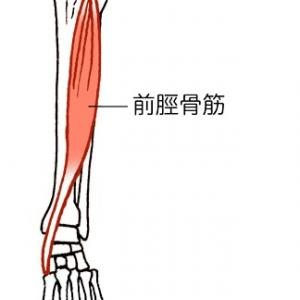 前脛骨筋と骨膜炎の炎症