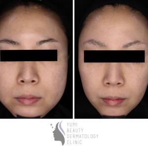 小顔治療の定番!!エラボトックス+ハイフ。