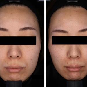 ヒアルロン酸リフトは小顔効果があります!②