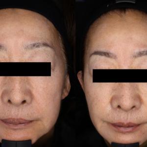 ヒアルロン酸リフトは小顔効果があります!③