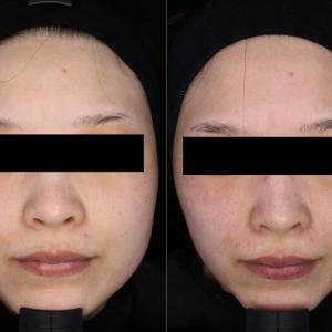 小顔治療組み合わせ☆2ヶ月半の経過
