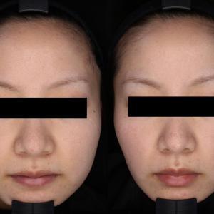 小顔治療☆2ヶ月の効果