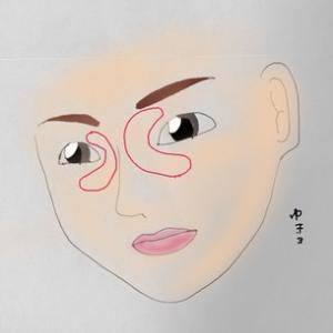 目のまわりのボコボコは、汗管腫でした