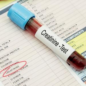 【セルフ人体実験】クレアチニン値が高いので1ヶ月半クレアチン摂取をやめた結果【少し下がった】