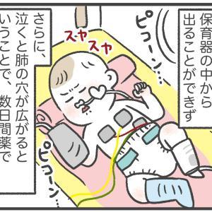 【おっくん出産記 ④】呼吸窮迫症候群と気胸