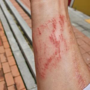 「痛々しい」階段で転倒し怪我して帰ってきた。韓国薬局へ直行!