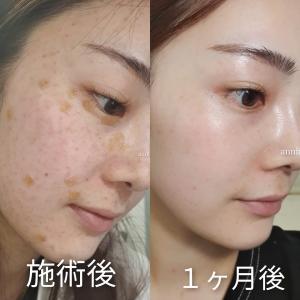「水光注射」で弾ける肌に!韓国皮膚科でシミ取り美活レポ!