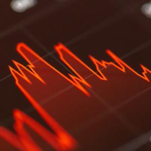 【短期売買向け】出来高ランキングでの株の選び方考察