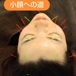 美容鍼で本質的小顔づくり!小顔矯正、ボトックスとの違いは?