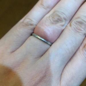 手術前日、抜けない結婚指輪…