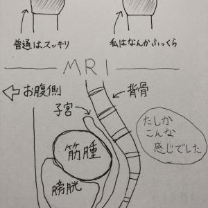 8、MRI結果