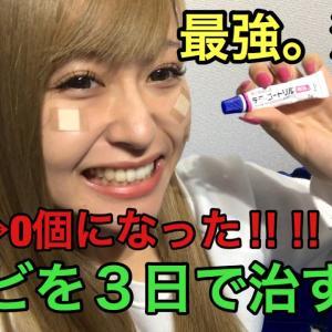 【最強説】3日でニキビを治す方法【40個→0個】