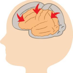 アルコール依存症の症状 脳萎縮、末梢神経障害、大腿骨頭壊死
