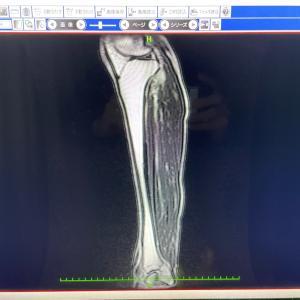 MRIの結果