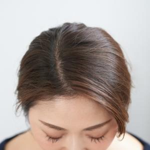 10年後の私の頭皮どうなるの?厚生労働省認可!女性用育毛剤『マイナチュレ』薄毛からふさふさへ