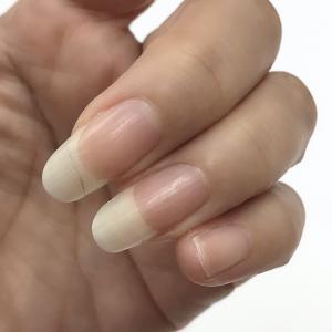 爪割れ対策!セルフハンドケア習慣を身に付ける3つのポイント