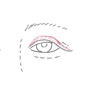 『目の上のたるみ』に対する術式の選択