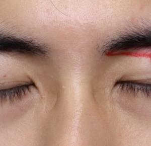 『眉下切開法』の動画(YouTube)です‼︎