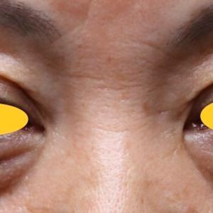 『目の上/下のタルミ・凹み』の修正です。昨日の続き...