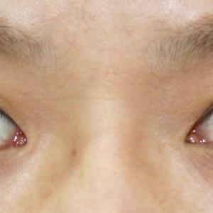 『眉下リフト』で目の上をスッキリ・綺麗に