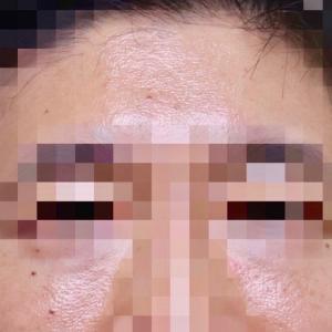 『プレミアムPRP皮膚再生療法』の紹介です。
