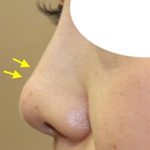 『お鼻の他院修正手術』 耳介軟骨移植後の修正