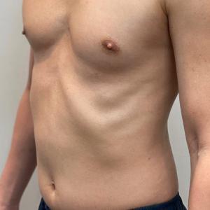 切らない痩身 お約束しました私の『リポセル』後1ヶ月です。