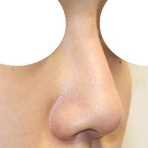 『鼻中隔延長術』で、スッキリ美人鼻
