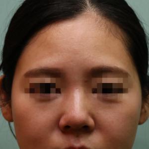 『プレミアムPRP皮膚再生療法』 目の下の凹み、鼻翼基部の凹み、額の凹凸 をキレイに