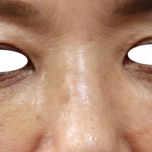 『下眼瞼除皺術』で目の下のシワ・たるみをスッキリ