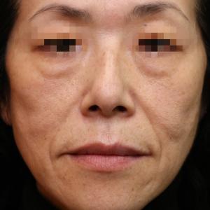 『プレミアムPRP皮膚再生療法』究極のアンチエイジング いったい何歳の若返り?