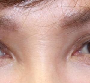 『眼瞼下垂切開法』 目元を 若く綺麗に