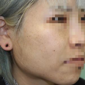 『フェイスリフト手術』 綺麗なフェイスラインを そして頬までしっかりとリフトアップ