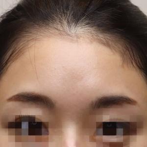 『プレミアムPRP皮膚再生療法』 丸く可愛らしいおでこになりましたね