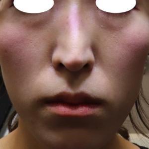 『プレミアムPRP皮膚再生療法』 必見!! とても綺麗なお顔立ちに